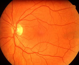 Macular Degeneration - watch the video